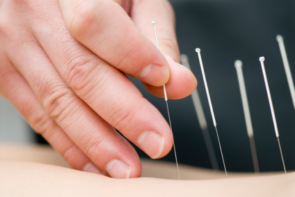 Acupuncture MN